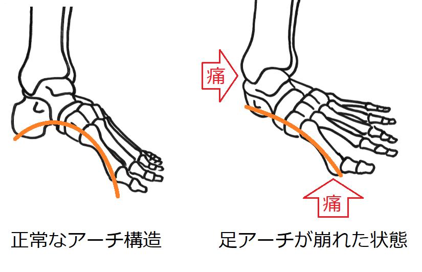 足底装具を作る際靴選びに困ったことはありますか?